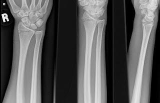 X-ray of my broken wrist