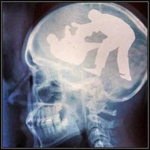 BJJ on the brain!
